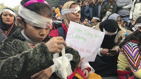 شاهد: متظاهرون يضعون ضمادات احتجاجا على عنف الشرطة في الهند