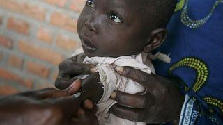 Κονγκό: Περισσότεροι από 6.000 οι νεκροί από ιλαρά