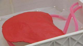 أمل جديد في زراعة الكبد.. اختراع جهاز يحافظ على الكبد خارج الجسم لمدة أسبوع كامل