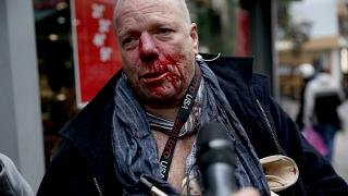 Foreign journalist attacked by far-right protesters in Athens