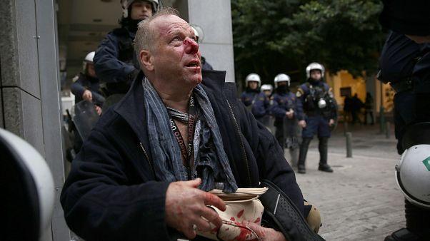 Ο δημοσιογράφος Τόμας Γιακόμπι τραυματισμένος από εθνικιστές με κουκούλες που συμμετείχαν σε διαδήλωση κατά των μεταναστών στο Σύνταγμα