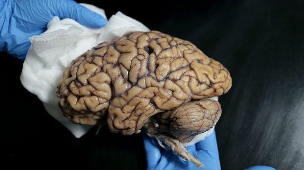 Um dos 60 exemplares armazenados no Banco de Cérebros Humanos
