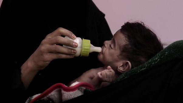 أم ترضع طفلها البالغ من العمر سبعة أشهر والذي يعاني من سوء التغذية