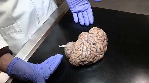 Η Τράπεζα Ανθρώπινου Εγκεφάλου ψάχνει υγιείς δωρητές