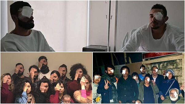 """""""لأجل عيون"""" مصابي الحراك في لبنان.. هاشتاغ """"ثورتنا عيونكم"""" يجتاح مواقع التواصل"""