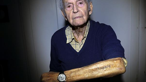 In this Saturday, Jan. 4, 2020 photo Holocaust and Auschwitz survivor Leon Schwarzbaum shows his tattooed identification number in his home in Berlin.