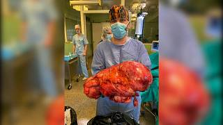 Letonya'da bir kanser hastasından 15 kg'lık timör çıkartıldı