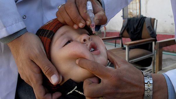 تلقيح أحد الأطفال في بيشاور بباكستان   أ ب