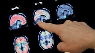 طبيب ينظر إلى فحص طبقي للدماغ لمصاب بالزهايمر- فونكس الولايات المتحدة