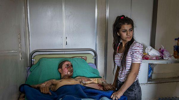 Un combatiente kurdo recibe una visita en el hospital