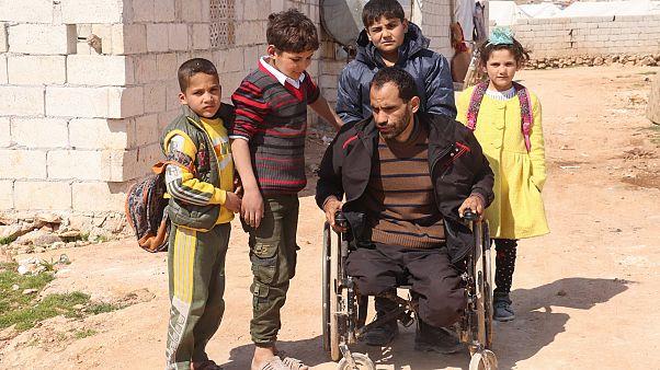 الحرب السورية تترك بصماتها على جسد نازح لاحقته لعنة القصف