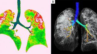 54 yaşındaki Covid-19 hastasının akciğer BT görüntüleri