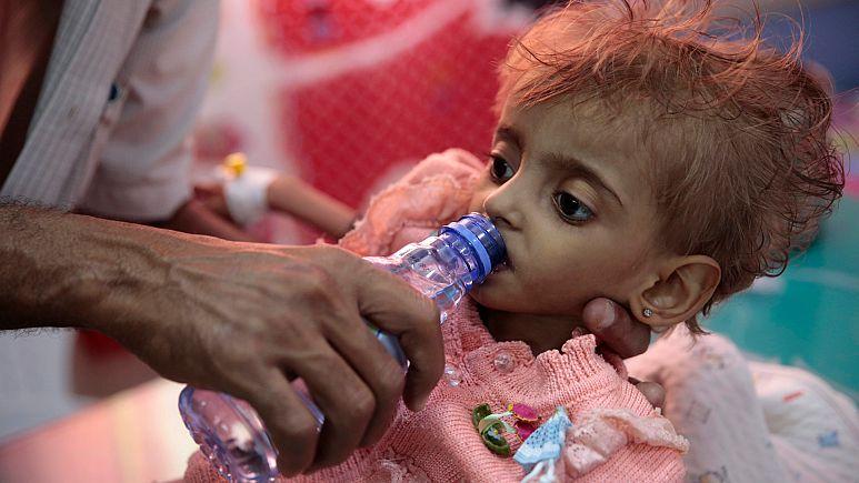 """""""Yemenlilerin yeterince içme suyu bile yok"""""""