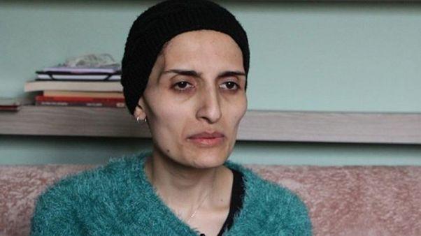 هلین بولک، خواننده «گروپ یوروم» ترکیه پس از ۲۸۸ روز اعتصاب غذا جان باخت