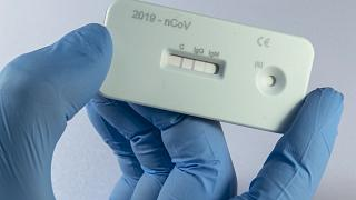 A scientist presents an antibody test for coronavirus in a laboratory in Germany.
