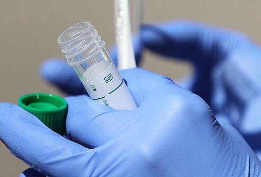 Германия ищет антитела к коронавирусу