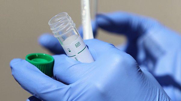 Negyedórás francia teszt a vírus kimutatására