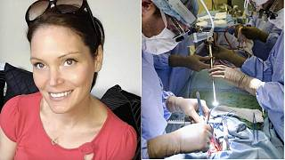 Vicki Meredrew (left) with surgery file picture (right)