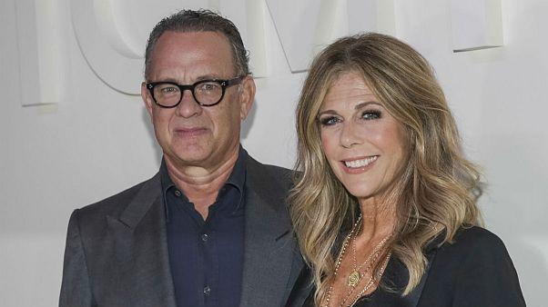 ریتا ویلسون، خواننده آمریکایی و همسر تام هنکس، عوارض درمان کرونا با کلروکین را فاش کرد