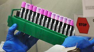 برآورد اطلاعاتی گروه امنیتی «پنج چشم» از منشأ ویروس کرونا