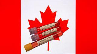 Kanada'da Covid-19'a karşı özel bir diyaliz tedavisi geliştirildi