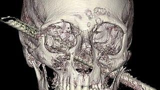 Mucize ameliyat: Beynine demir çubuk saplanan Filistinli taburcu oldu