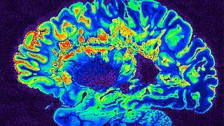 مغز انسان در خواب خاطرات زمان بیداری را بازپخش میکند