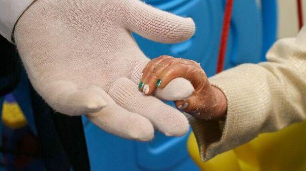 یونیسف با حمایت مالی آلمان پانسمان مخصوص کودکان مبتلا به ایبی را به ایران ارسال کرد