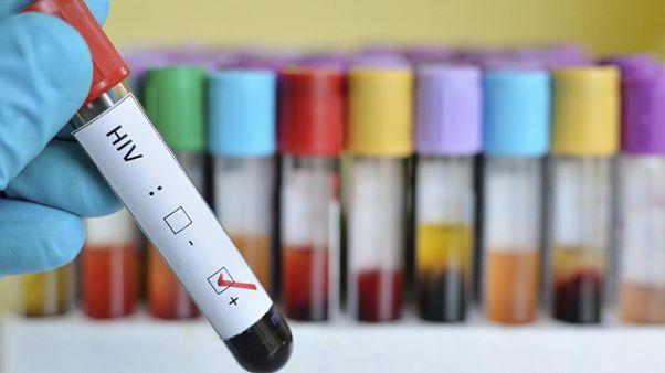 Uzmanlar uyarıyor: Covid-19'a karşı alınan önlemler AIDS hastalarının artışına neden olabilir