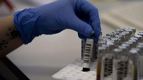 Campioni di sangue da sottoporre a test sierologici al Policlinico Tor Vergata di Roma