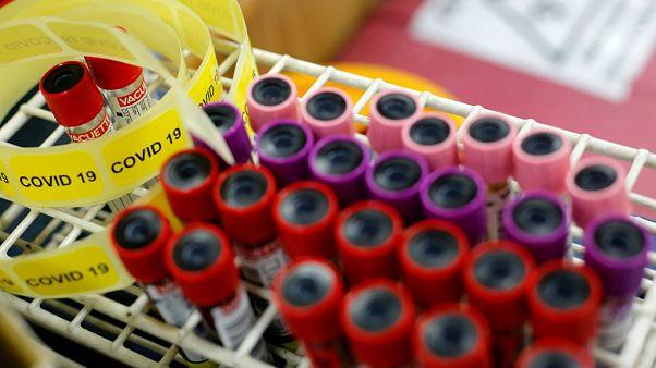 Araştırma: Covid-19'a karşı üretilen antikorlar kandan 2 ila 3 ay içinde siliniyor
