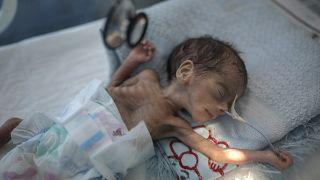 طفل حديث الولادة يعاني من سوء التغذية في حاضنة في مستشفى في صنعاء، اليمن.