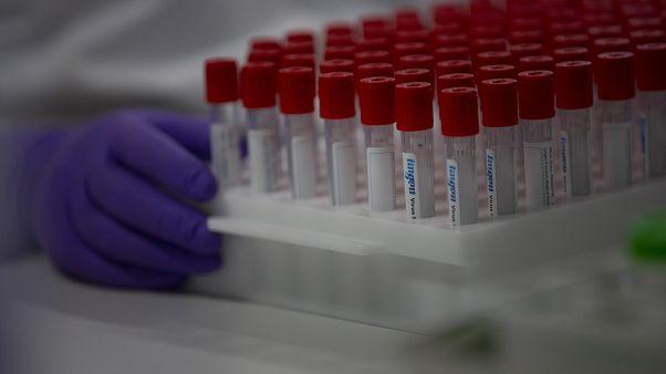 EU-Spendenmarathon: 15,9 Mrd. für Impfstoff gegen Covid-19
