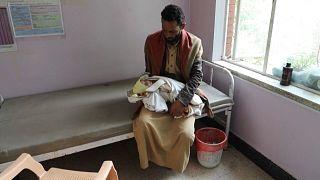 یونیسف با انتشار گزارشی از مرگ میلیونها کودک یمنی به دلیل گرسنگی ابراز نگرانی کرد