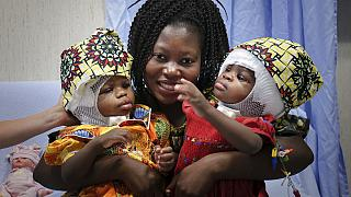 Βατικανό: Επιτυχής ο διαχωρισμός των σιαμαίων κοριτσιών
