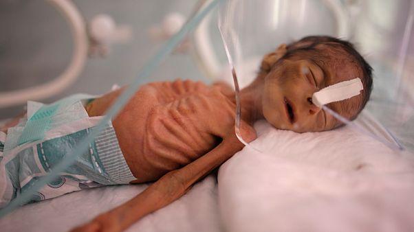 Yemen'deki savaş sebebiyle ortaya çıkan açlıkta iyi beslenememiş yeni doğmuş bir bebek