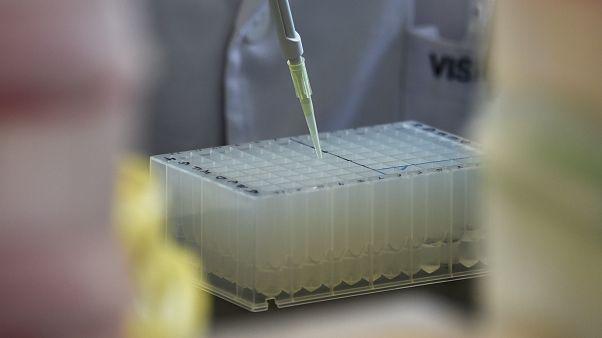 اختبار للحمض النووي