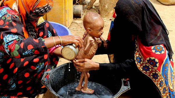 Голод, связанный с пандемией, убивает детей