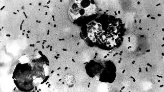 Yersinia pestis isimli bakteri