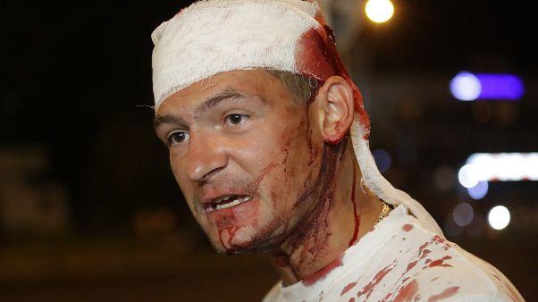 Демонстрант, раненный в столкновениях. Минск, 10 августа 2020