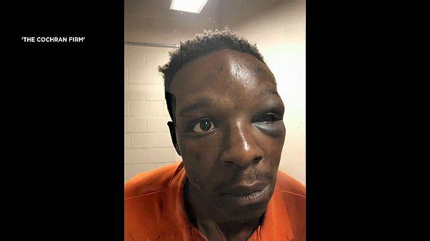 صورة لمواطن أمريكي أسود يدعى رودريك وولكر وهو في مركز الشرطة بعد أن أوسع ضربا على يد رجلي أمن