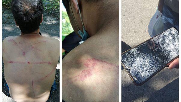 Migranti accusano la polizia rumena di violenze e respingimenti illegali nei pressi di Majdanpek, al confine con la Romania: foto dell'8 agosto 2020