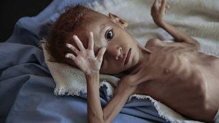 Selon l'ONU, 24 millions de Yéménites ont besoin d'aide humanitaire