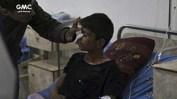 طفل من الغوطة الشرقية يتلقى العلاج بعد قصف طال البلدة