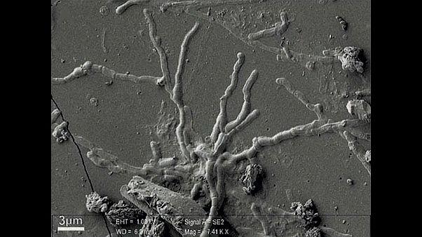 """Neurónios """"bem preservados"""" encontrados em cérebro de 2.000 anos"""