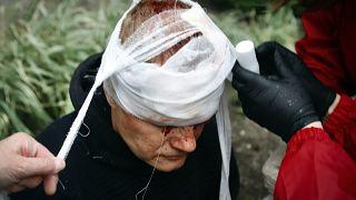 متظاهر بيلاروسي أصيب في رأسه
