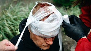 Sérült tüntetőt ápolnak Minszkben, október 11-én