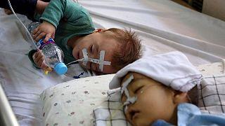 بستری شده کودکان در افغانستان به دلیل آلودگی هوا