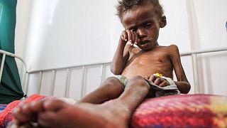 Yemenli bir çocuk