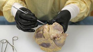 Covid-19'dan ölen bir hastanın kalbi Washington Tıp Fakültesi'nde incelenirken
